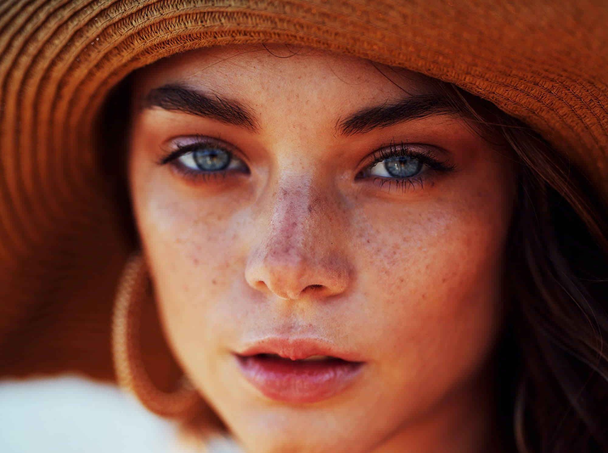 Woman with photosensitivity skin rash wearing a sun hat.